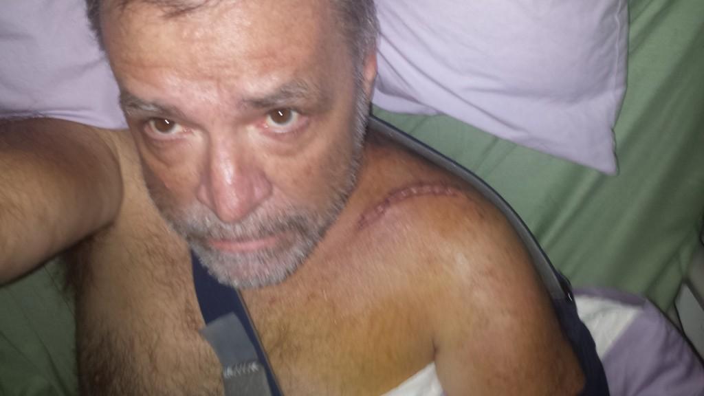 shoulder-surgery-e1435930796924-1024x576